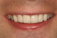 Cosmetic Dental Crowns