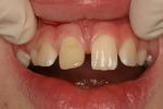Composite-Dental-Bonding-Before-Image