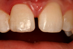 Composite-Dental-Bonding-After-Image
