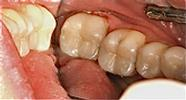 Replacing-Old-Fillings-with-Composite-Fillings-After-Image